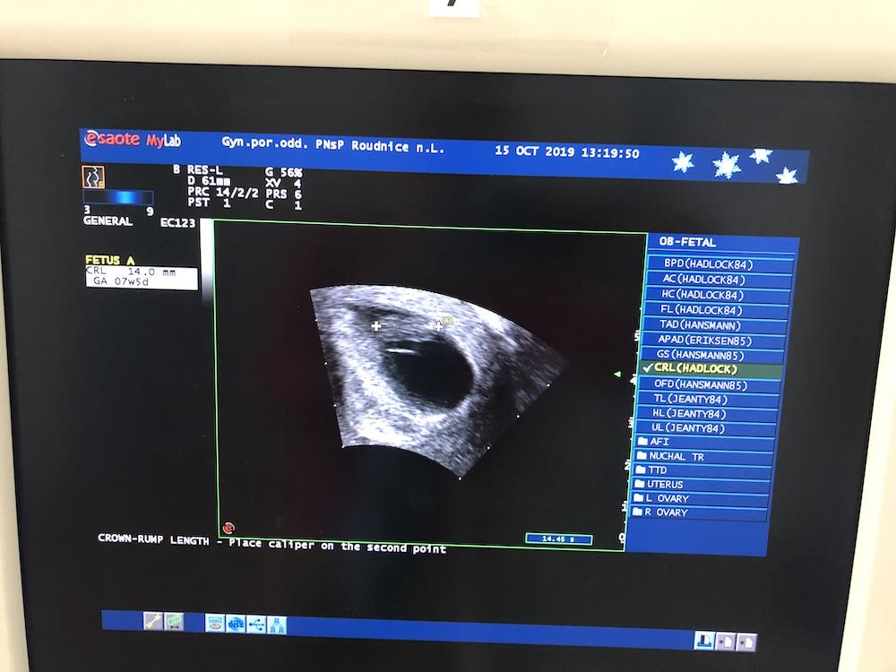 Ultrazvuk z kontroly - HCG nemusí dvojnásobne rásť 7 týdeň tehotenstva